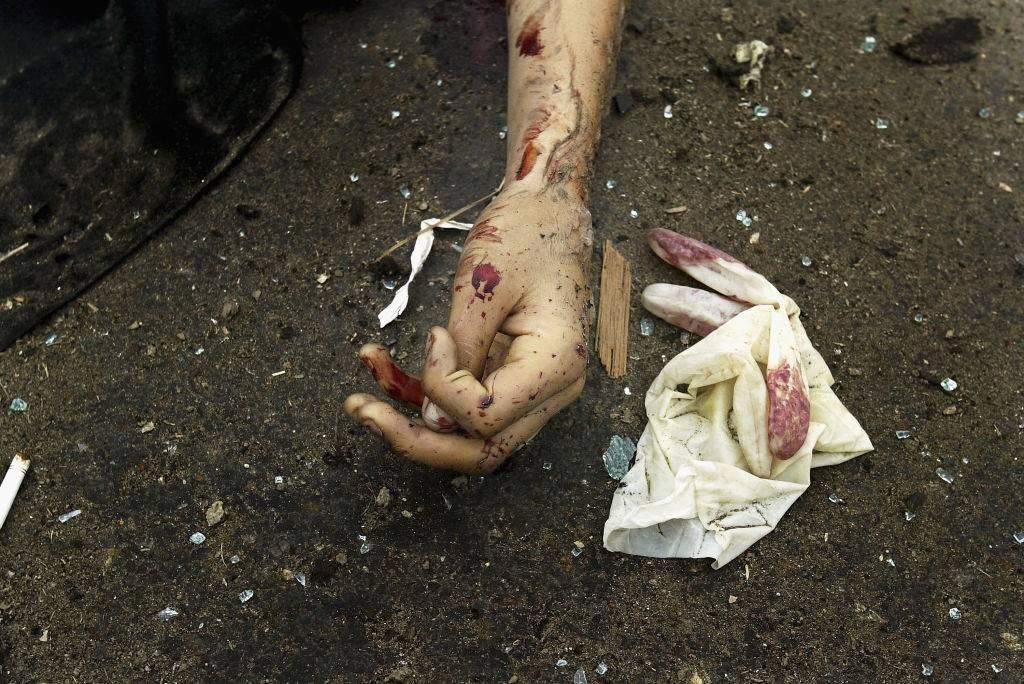 mano di una donna morta