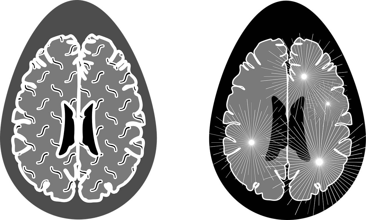 Cos'è la sclerosi multipla, cause e sintomi